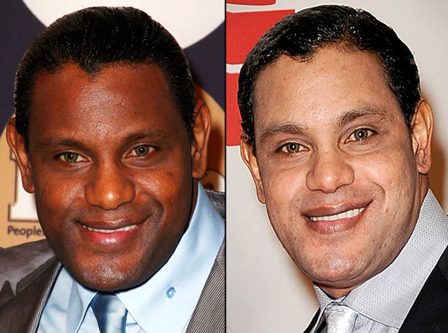 Sammy Sosa; Left (Before) and Right (Now)