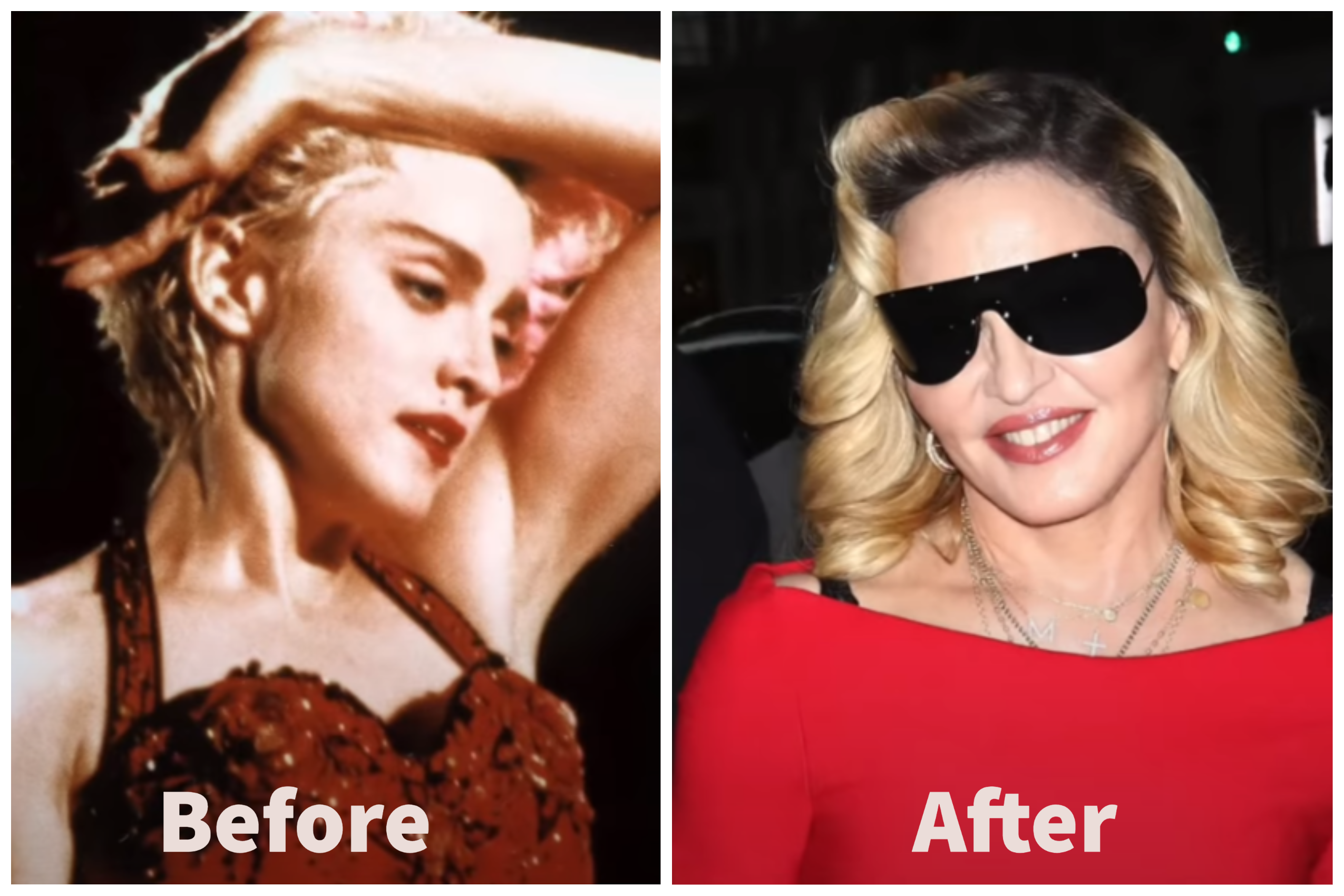 Madonna Before and After Plastic Surgery