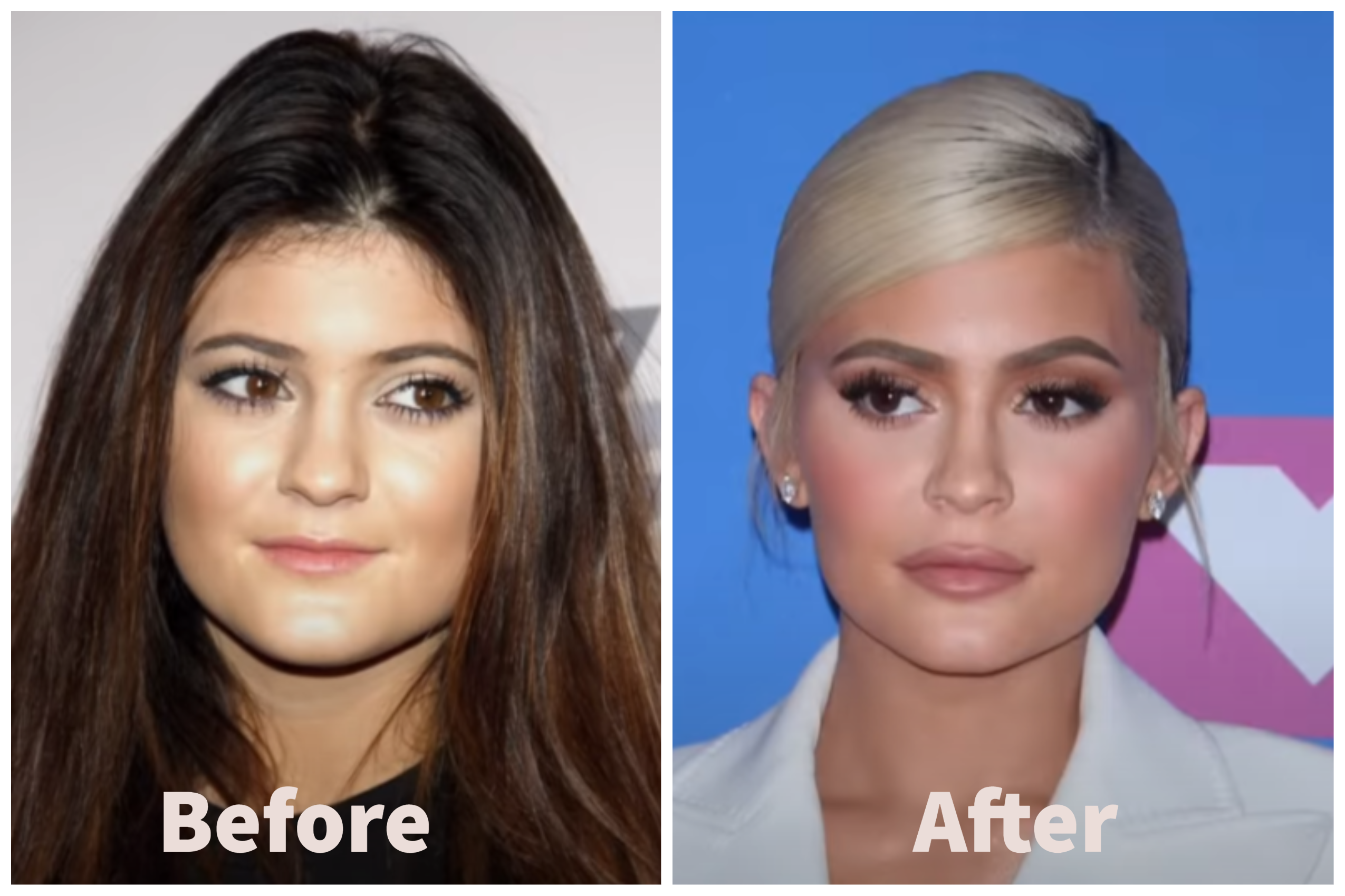 Kylie Jenner Before and After Plastic Surgery